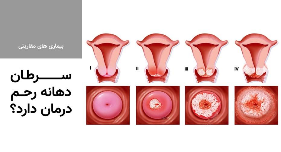 سرطان دهانه رحم درمان دارد؟