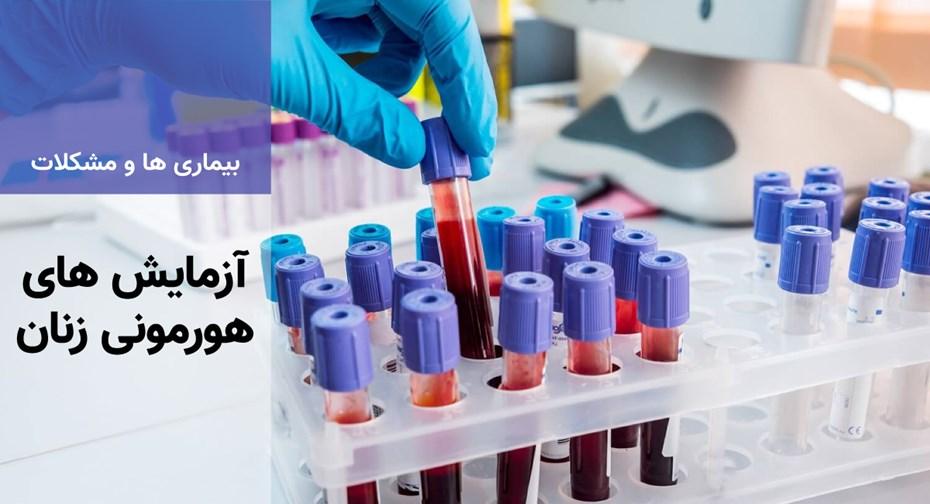 آزمایش های هورمونی زنان