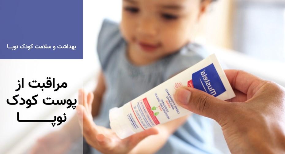 مراقبت از پوست کودک نوپا