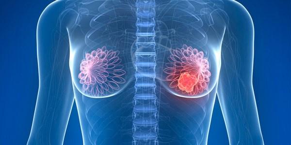 سرطان سینه، علائم و درمان