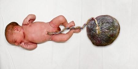 خوردن جفت جنین بعد از زایمان