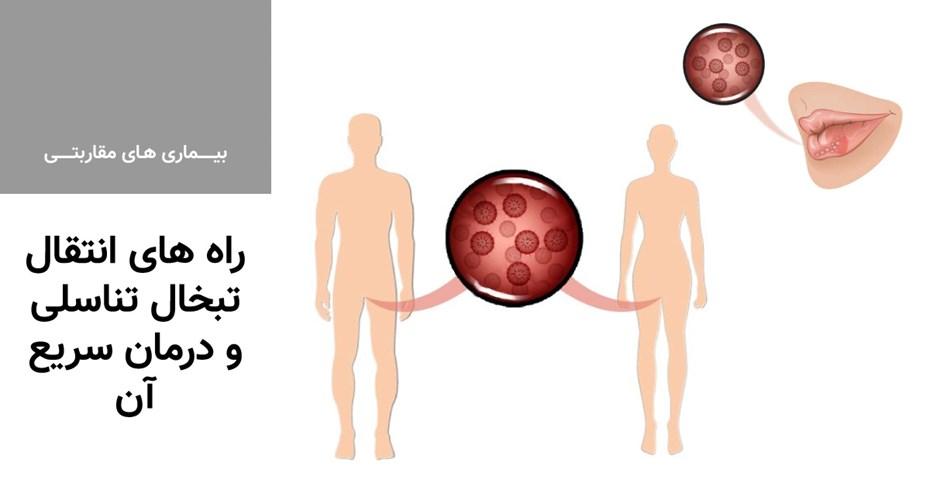 راه های انتقال تبخال تناسلی و درمان سریع آن