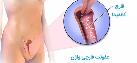 درباره عفونت قارچی واژن و درمان آن چه می دانید؟